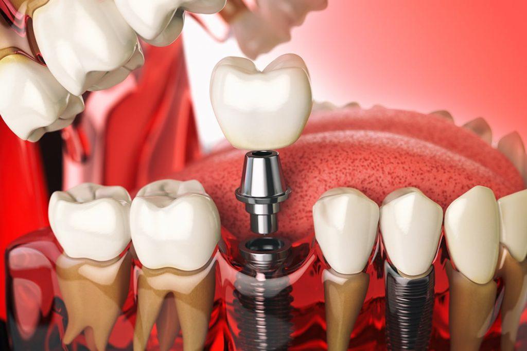 Protez Diş Tedavisi