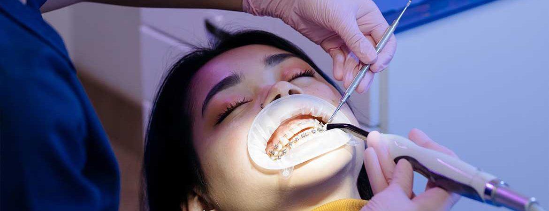 Lingual Ortodonti