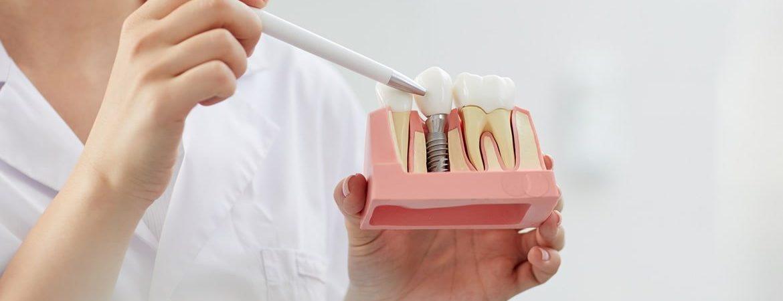 Çıt Çıt Protez Diş