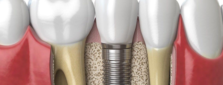 Diş Protezi Nedir?