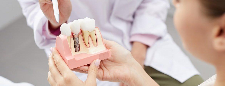 Protez Diş Fiyatları