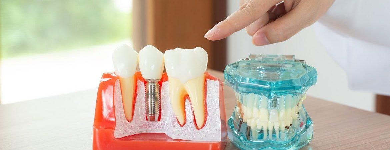 Yeni Nesil Diş Protezi