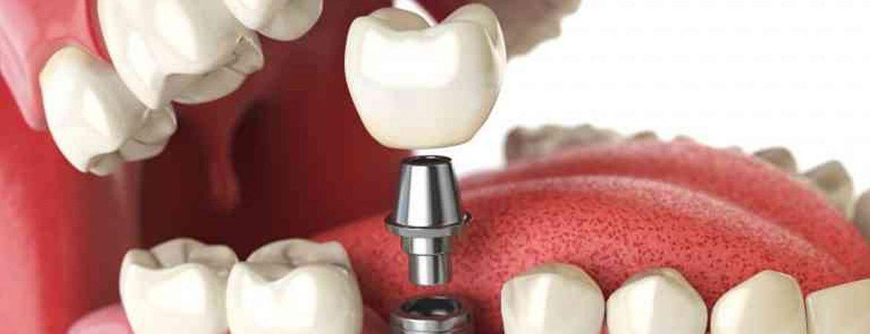 Diş Protezleri